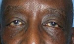 Lower Eyelid Lift