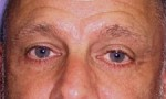 Lower Eyelid Lift