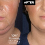 patient results before & after Kybella injections at Contemporary Plastic Surgery