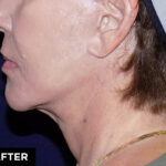 mini facelift with laser treatment after