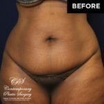 patient before drainless tummy tuck