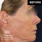 patient before skin resurfacing treatment