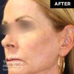 patient after skin resurfacing
