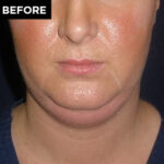 kybella patient before