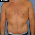 male breast reduction patient after