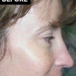 nose surgery patient before
