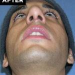 nose surgery patient after