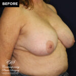 breast reduction implant patient before
