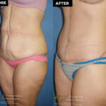 body lift patient before and after