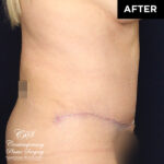 tummy tuck abdominoplasty patient after