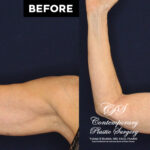 60 y.o woman desired arm contouring without lengthy scars. She underwent VASER liposuction with Renuvion skin tightening through portal sites