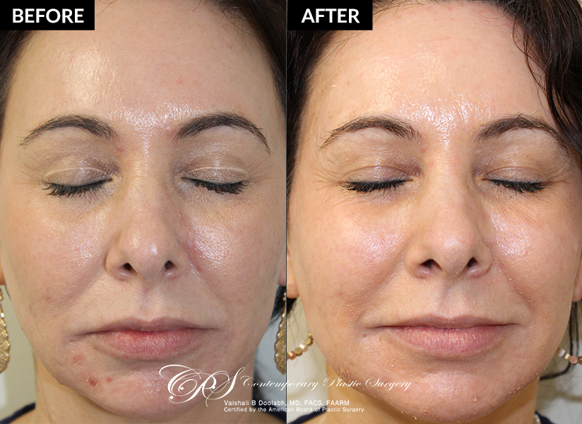 Patient 18228 results from a TCA Peel at Contemporary Plastic Surgery