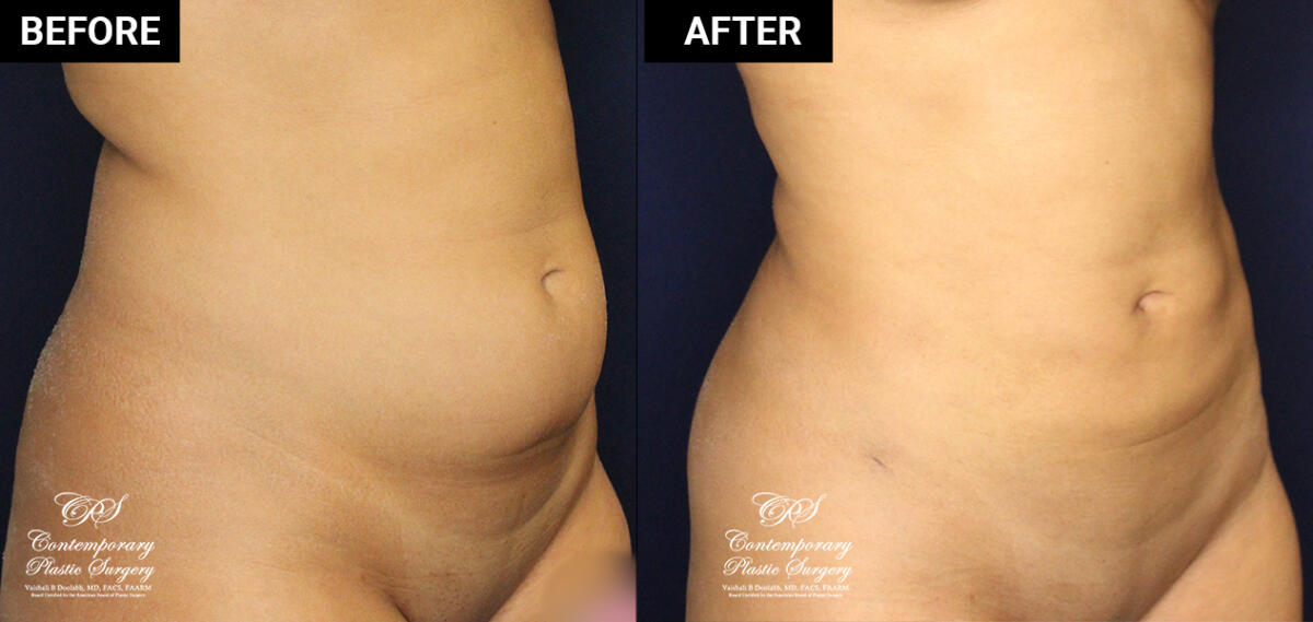 liposuction and skin tightening before and after