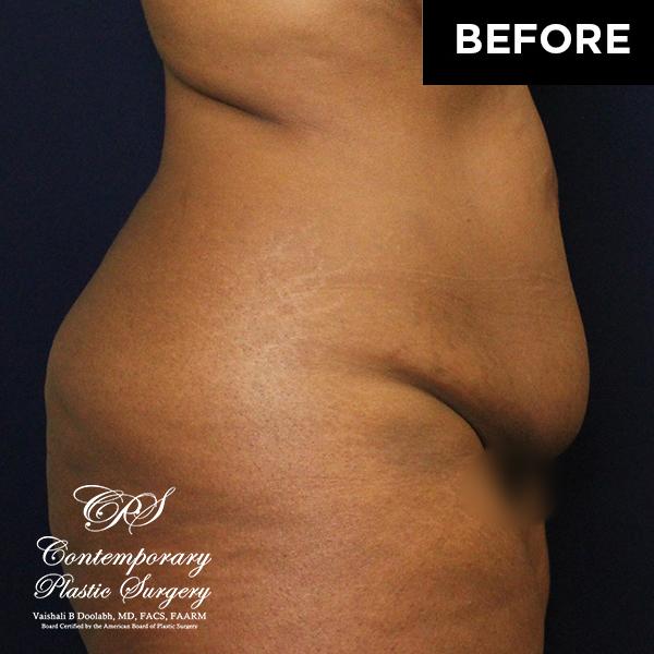 drainless tummy tuck abdominoplasty patient before (JJ-12302019)