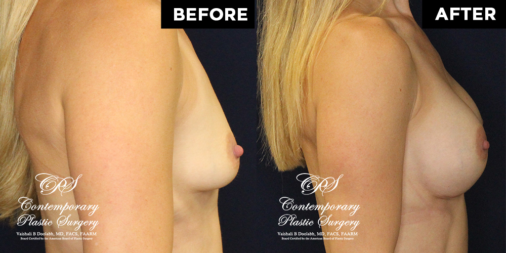Patient #15507's Breast Augmentation at Jacksonville plastic surgery clinic, Contemporary Plastic Surgery