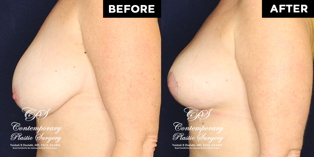 Patient #17994's Breast Lift before and after at Jacksonville plastic surgery clinic, Contemporary Plastic Surgery