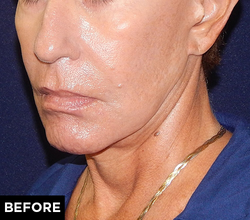 mini facelift and laser treatment before