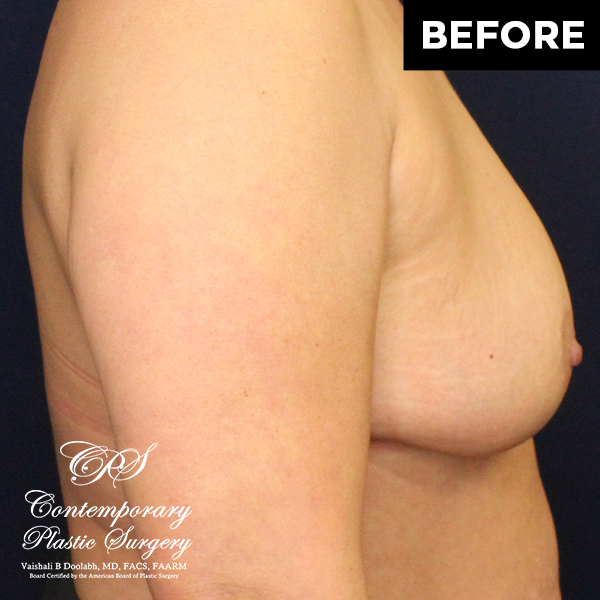 patient photo before breast lift