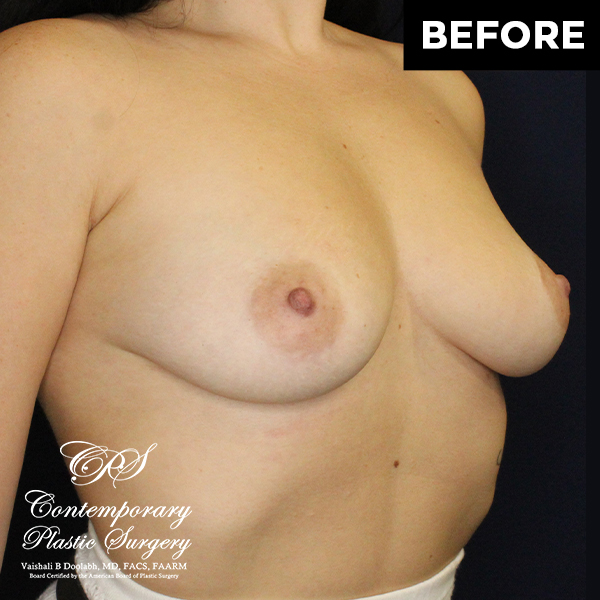 patient photo before breast augmentation