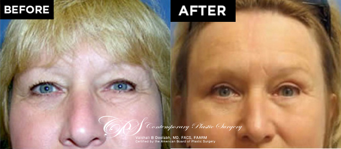 brow lift before after