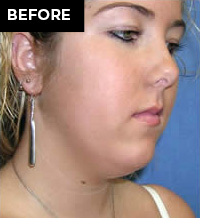 chin implant patient before