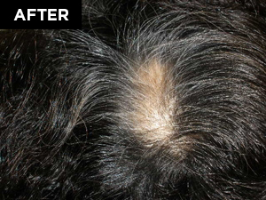 hair restoration patient after
