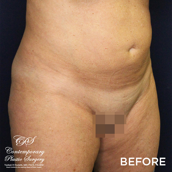 Before VASER liposuction & Renuvion