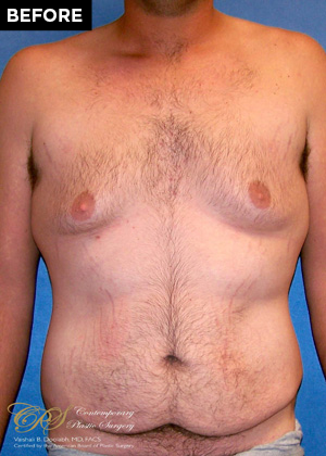 male breast reduction patient before