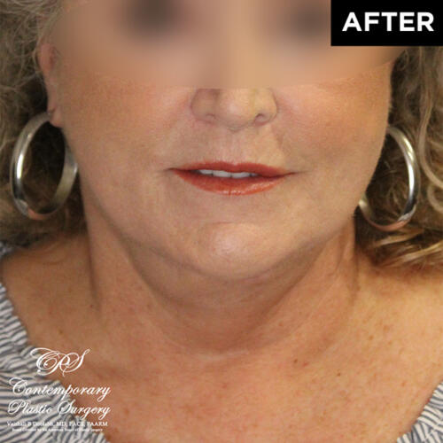lower face and neck lift after