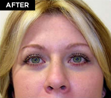 eyelid lift patient after