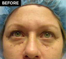 eyelid lift patient before
