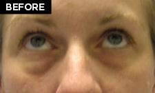 eyelidlift-2085