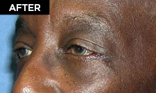 lower eyelid lift patient after