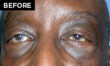 lower eyelid lift patient before