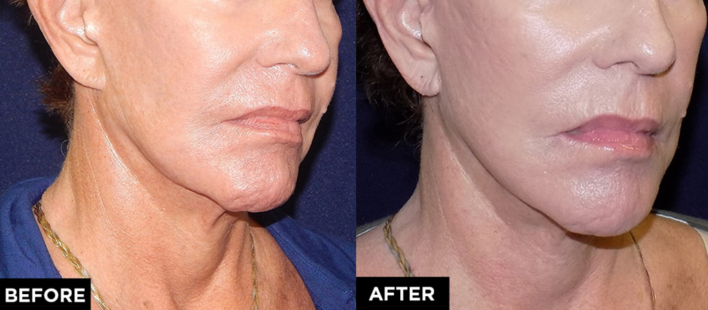 mini facelift and laser treatment before and after