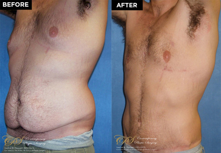 male breast reduction patient before and after