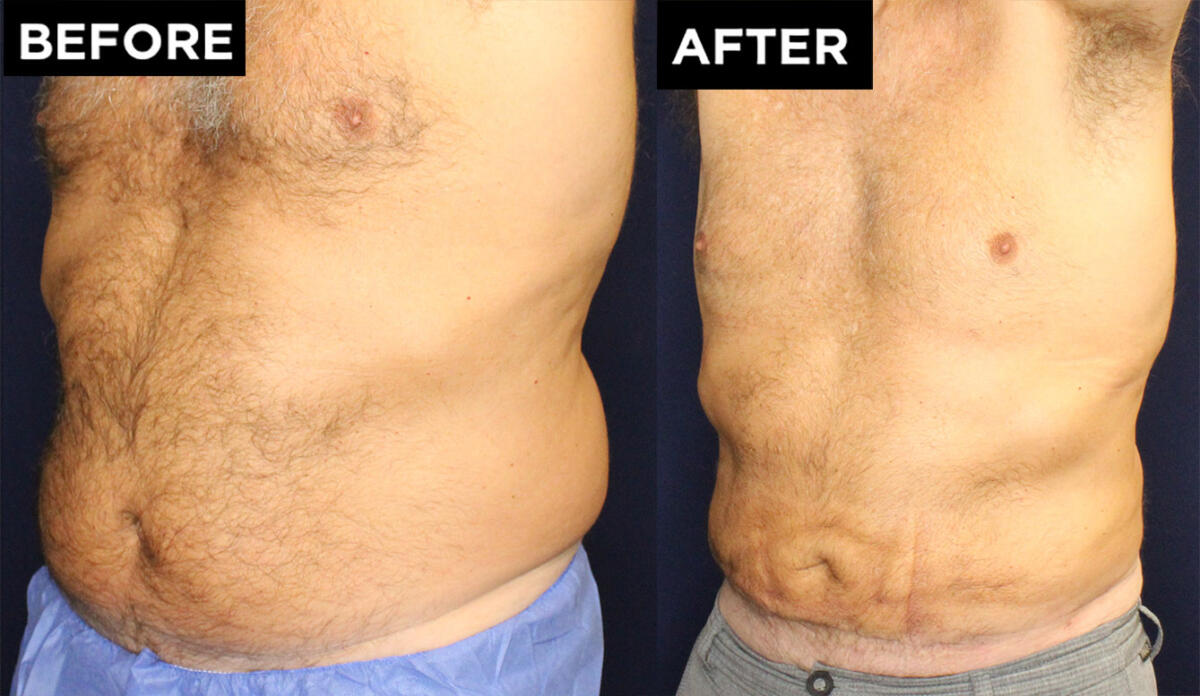 Liposuction and Renuvion before and after